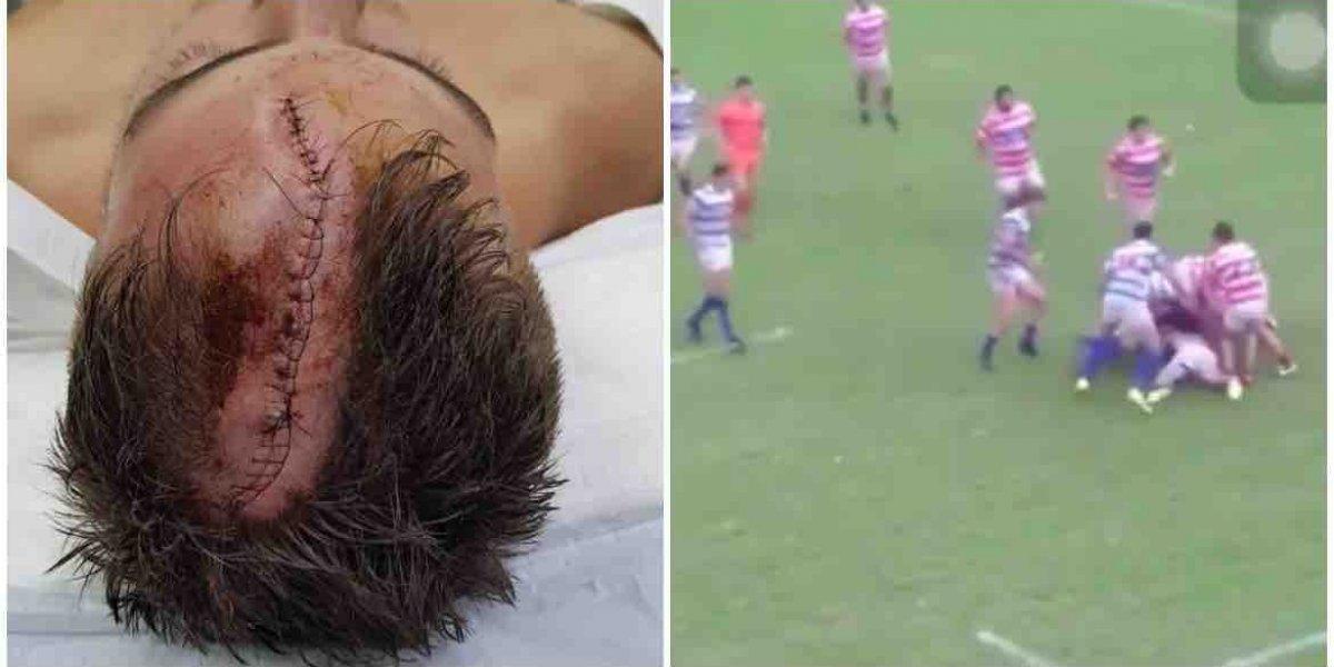 VIDEO: Jugador de rugby recibe 74 puntos de sutura tras fuerte golpe
