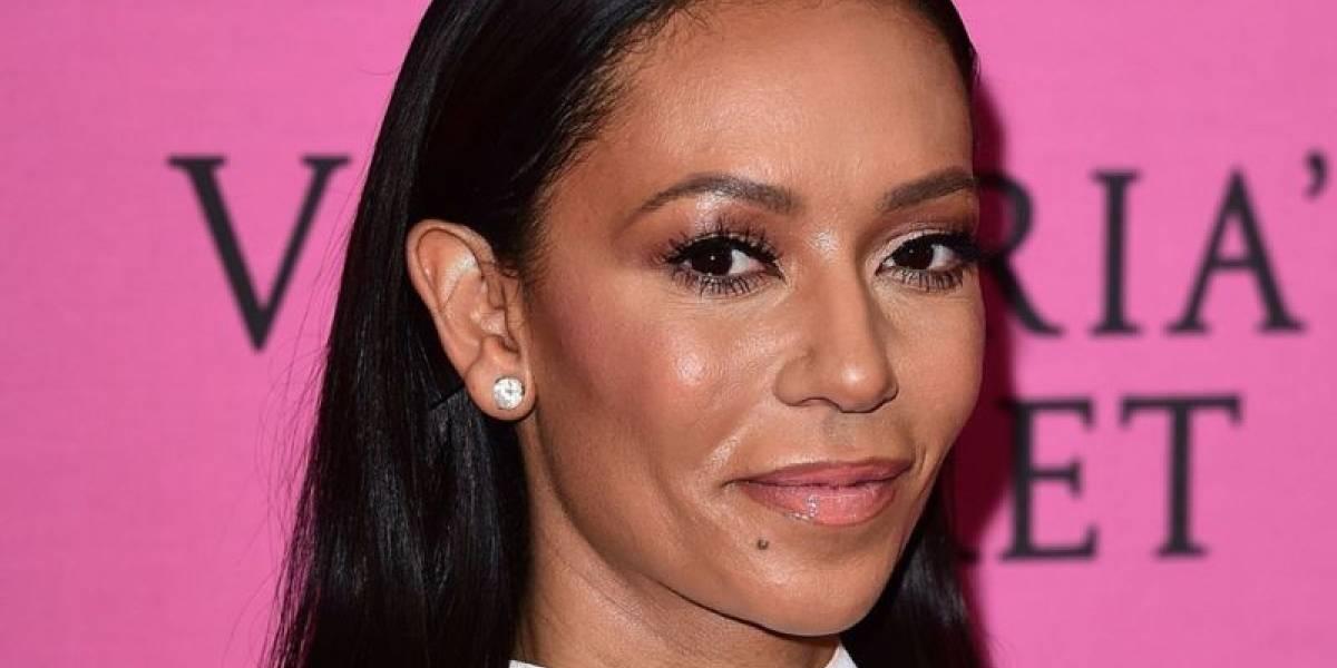 Turnê das Spice Girls é posta em cheque após cegueira temporária de Mel B