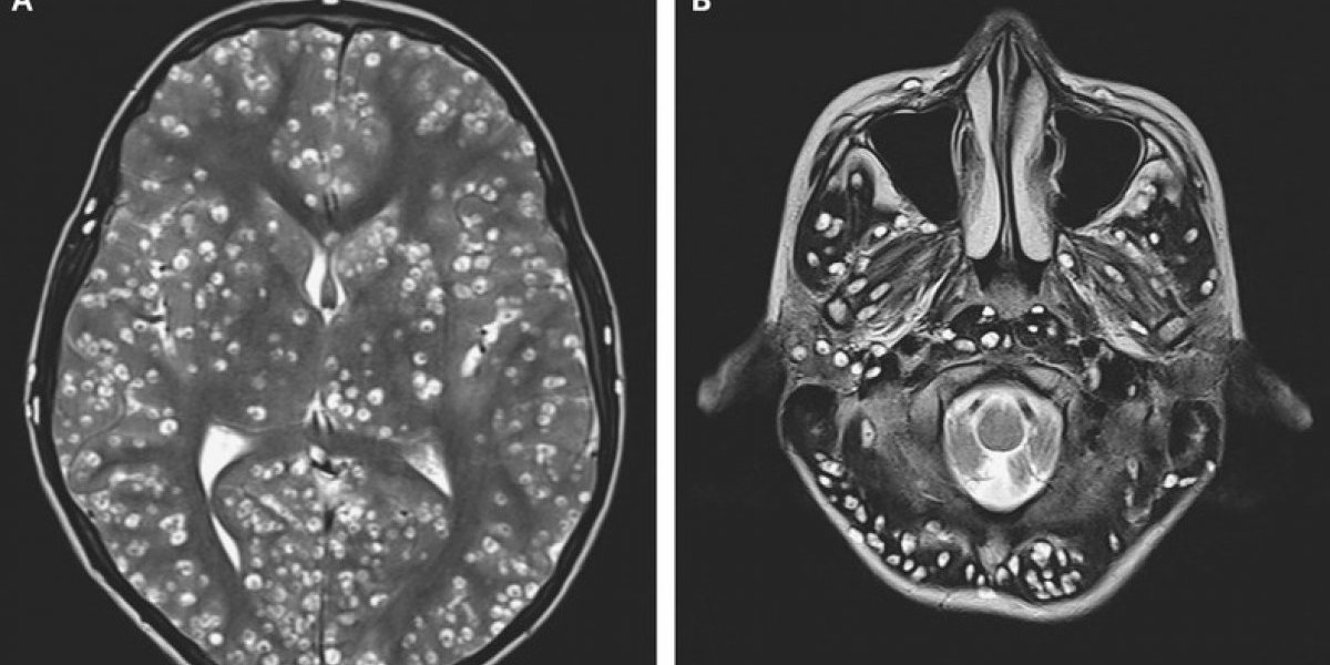 Horrible muerte de joven de 18 años: larvas parasitarias invadieron su cerebro tras comer cerdo mal cocinado
