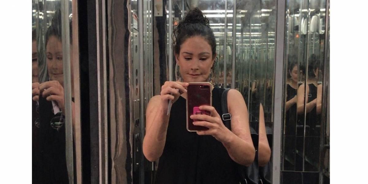 Natalia Ponce mostró cómo va su proceso tras 37 cirugías en el rostro