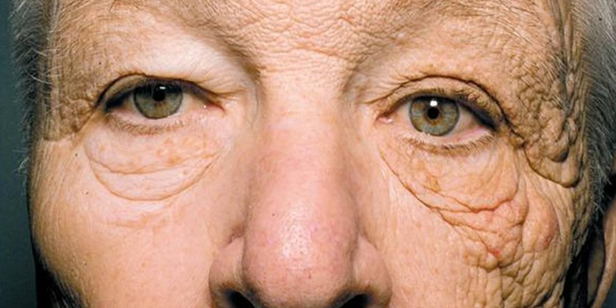 Impactante foto muestra el efecto de 28 años de sol sobre un rostro
