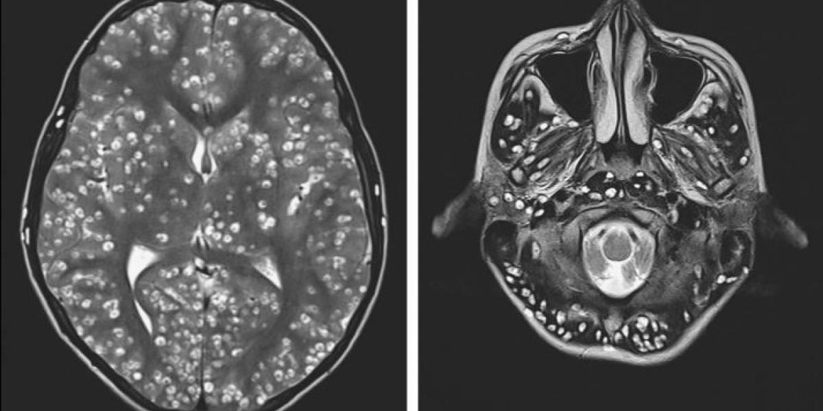 La impactante historia del paciente cuyo cerebro estaba lleno de parásitos