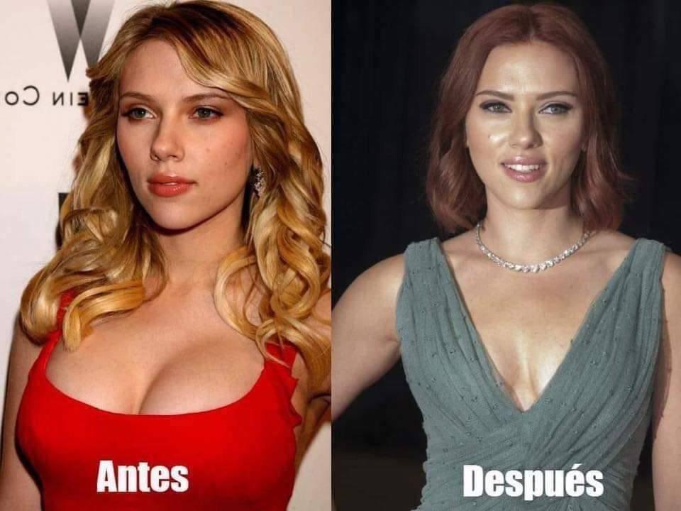Scarlett Johansson: Este es el resultado de su reducción de senos