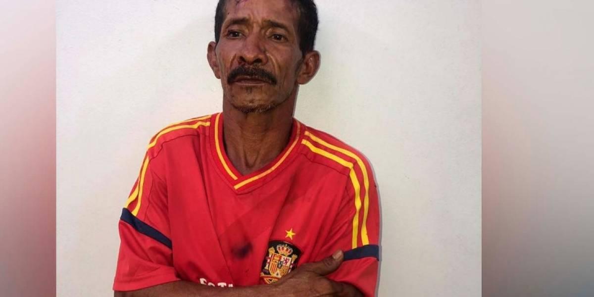 Hombre quemó con ácido a su expareja y a su hija de tres años
