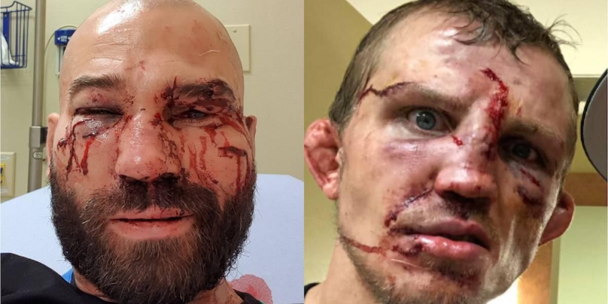 Peleadores terminan con el rostro desfigurado en intensa batalla a puño limpio