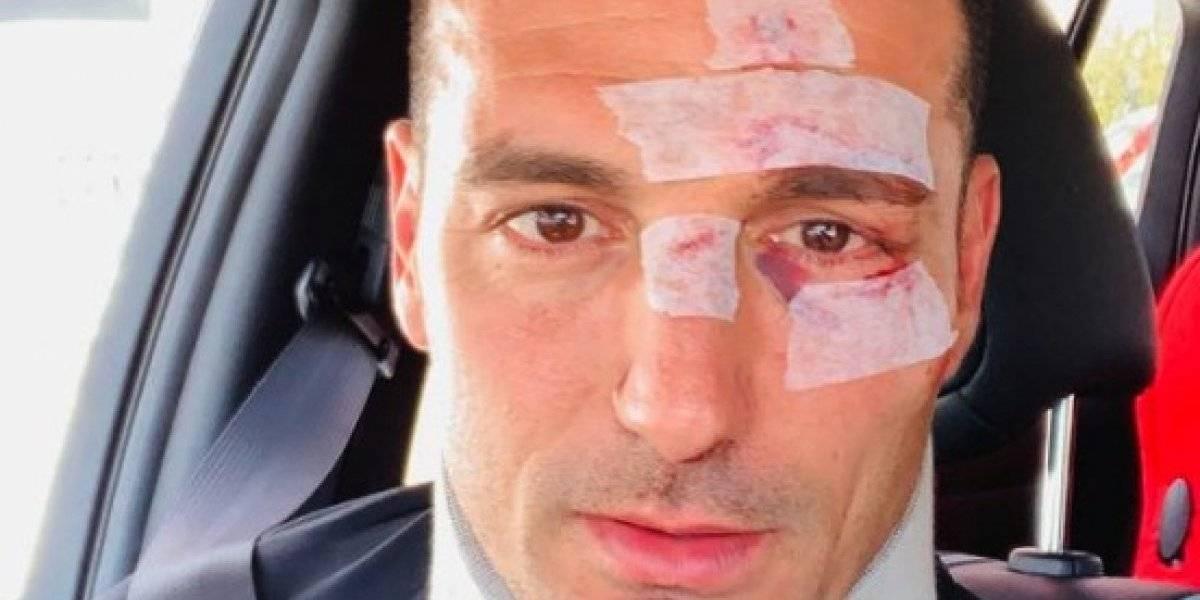 Atropellan a entrenador de la Selección Argentina: Lionel Scaloni queda con heridas tras ser embestido por vehículo en España