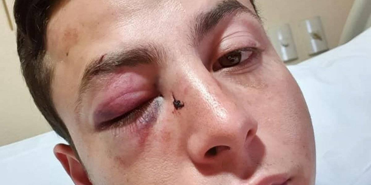 Jóvenes sufren ataque homofóbico en calles de Guadalajara