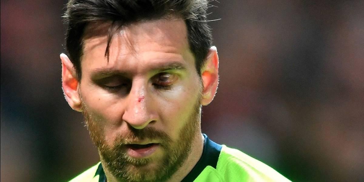 Messi presenta fuerte hematoma y será examinado