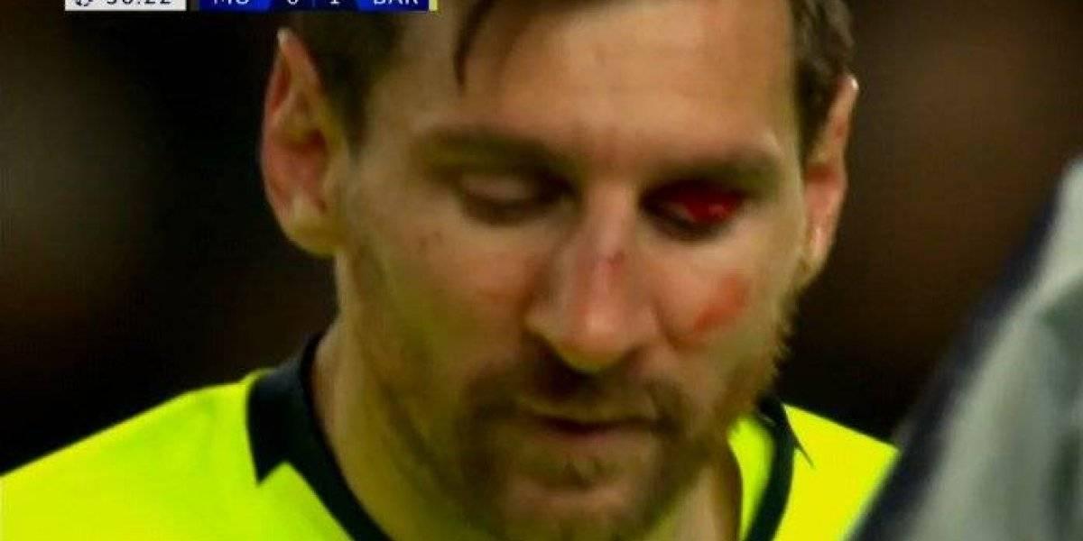 VIDEO. Messi sangra en la cancha y usuarios preguntan en qué round va