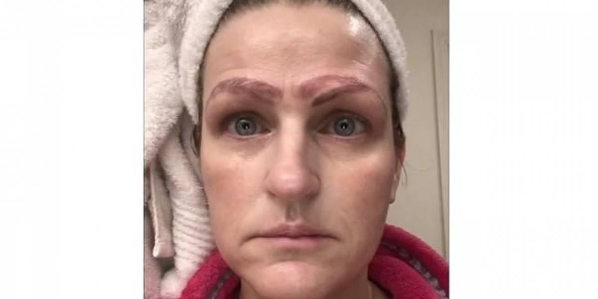 Mujer termina con cuatro cejas tras someterse a tratamiento estético