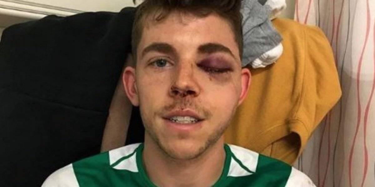Futbolista necesitará cirugía facial tras múltiples fracturas en un partido