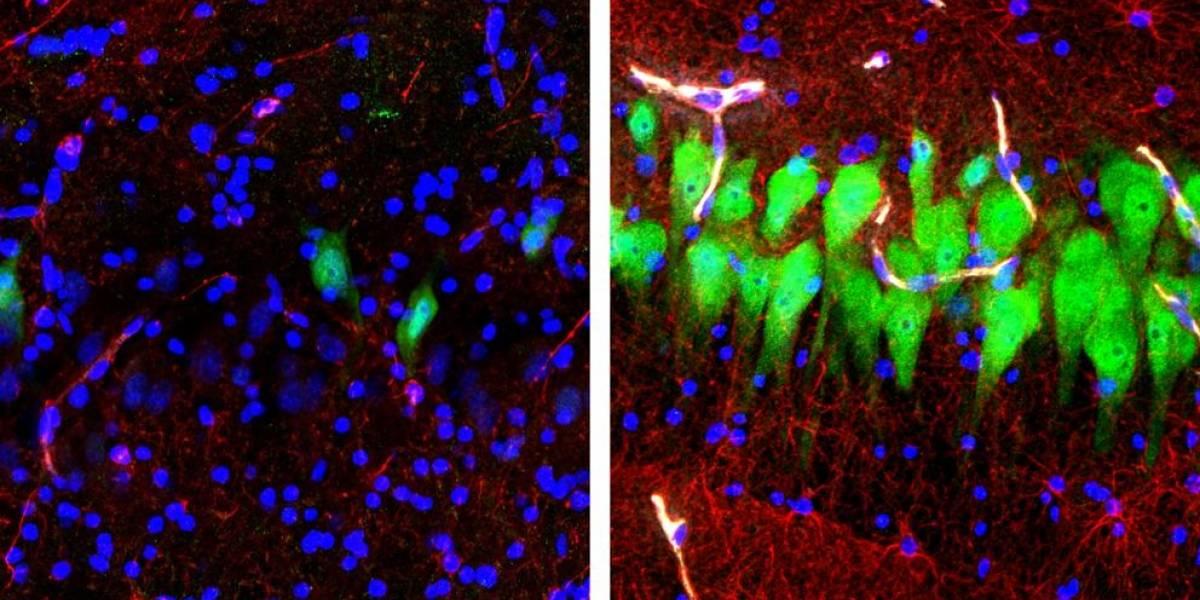 Científicos provocan actividad en cerebros de cerdos muertos