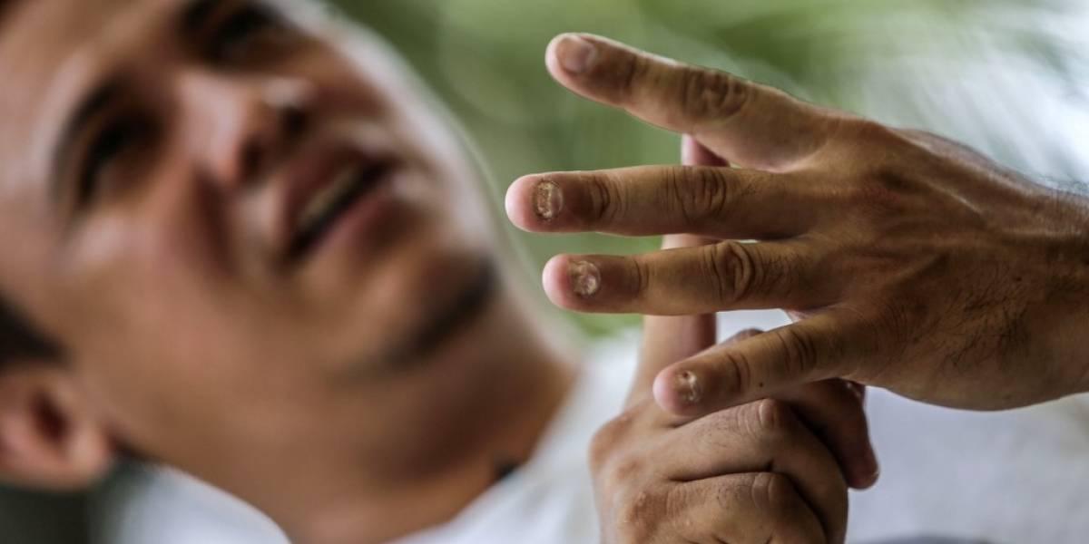 Preso excarcelado relata horror en cárcel de Nicaragua por protestar contra Ortega