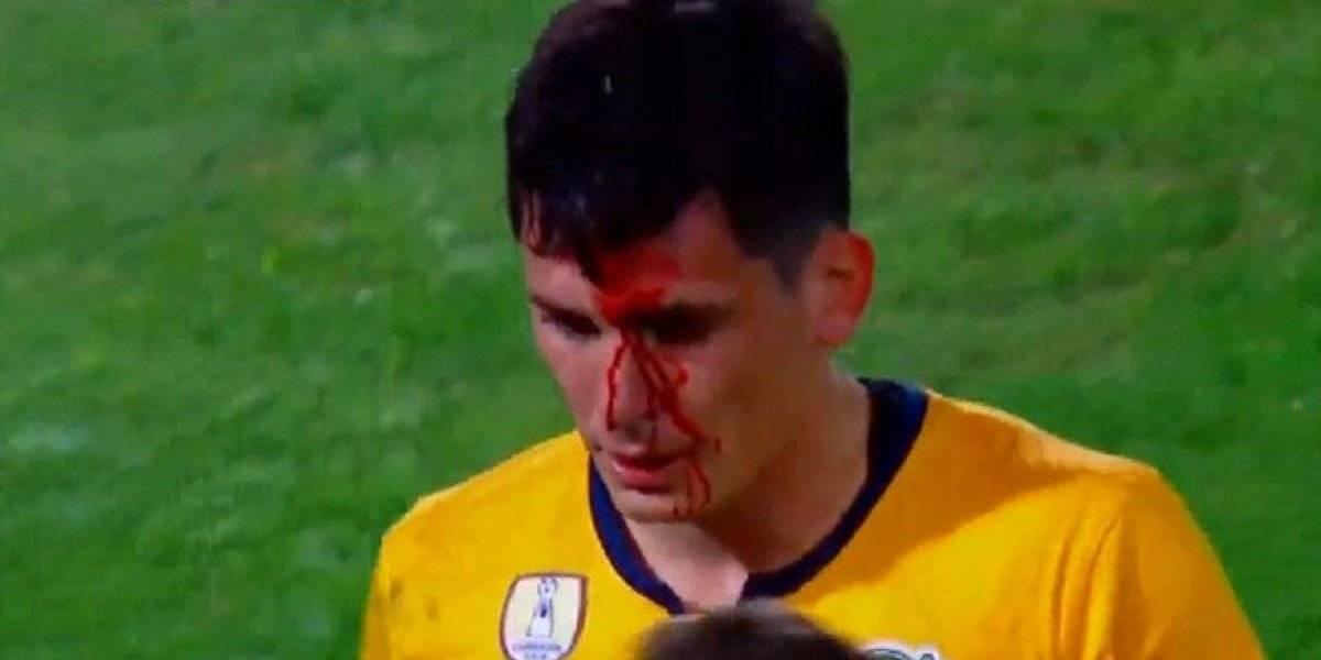 Alfonso Parot recibió brutal codazo y Rosario Central cayó ante Boca en la Supercopa Argentina