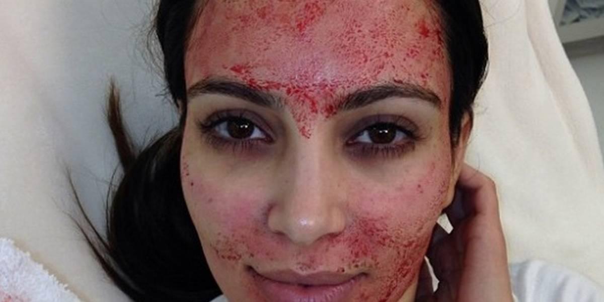 Spa contagia de VIH a clientas por hacer el famoso 'facial vampiro'