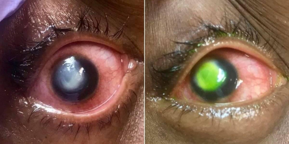 Médico compartilha imagens impactantes para mostrar por que não se deve dormir com lentes de contato