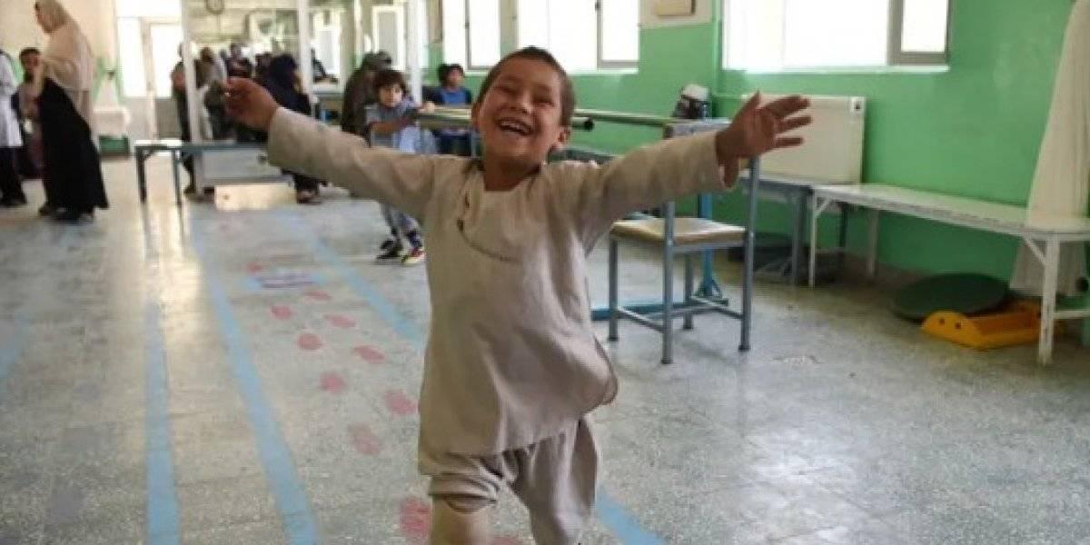 Criança comemora nova prótese para perna amputada e dança se torna viral na Internet