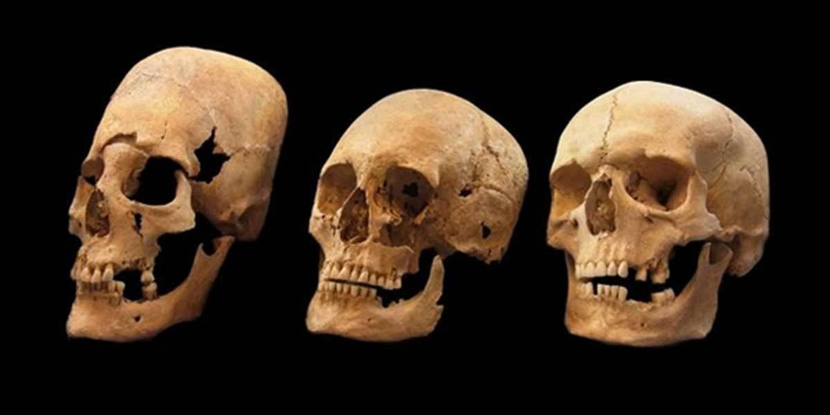 ¿1000 años de antigüedad? Encuentran misterioso cráneo alargado en Arica