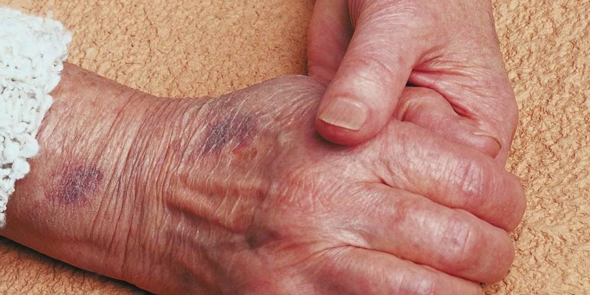 El maravilloso encuentro entre una mujer de 81 años y su madre de 103