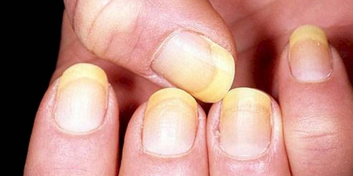 Por que minhas unhas têm uma cor diferente? Confira 3 sinais de doenças na ponta dos dedos