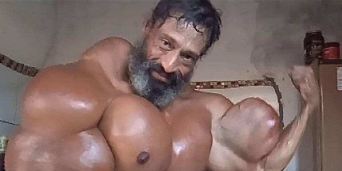 Sus bíceps miden casi 60 centímetros: brasileño arriesga su vida al inyectarse aceite para ser como Hulk y ser popular en Instagram