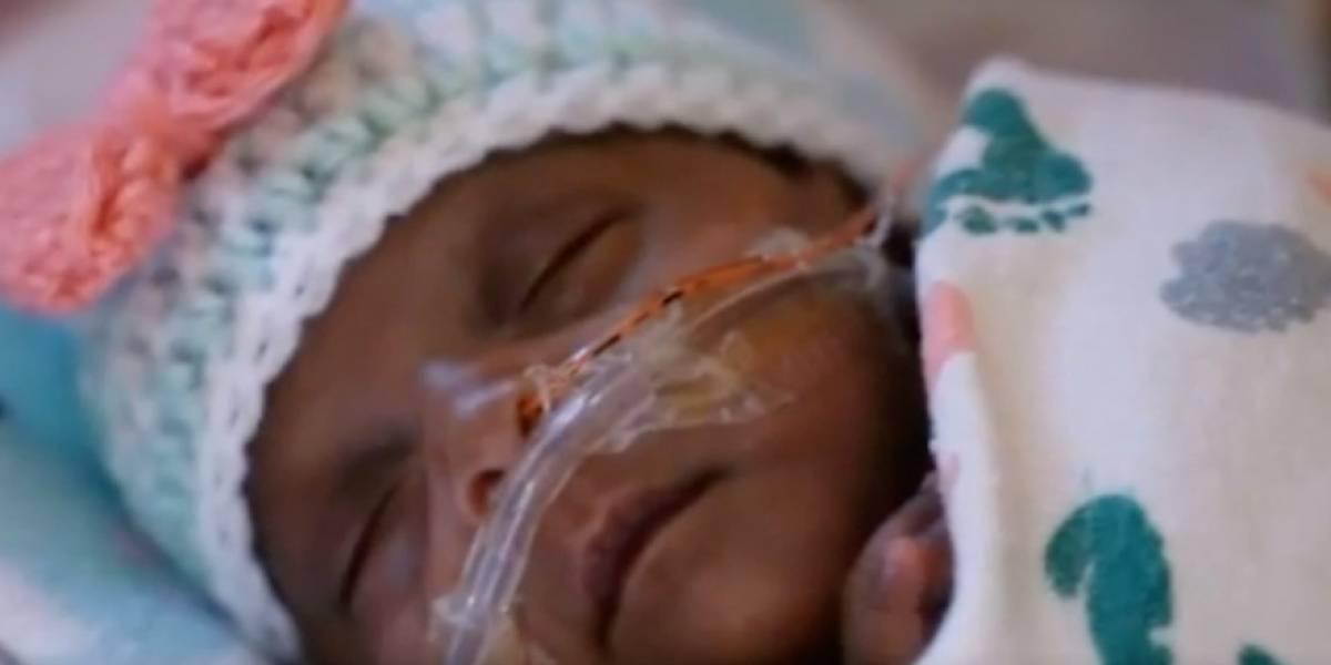 Hospital de San Diego revela nacimiento de la bebé más pequeño del mundo