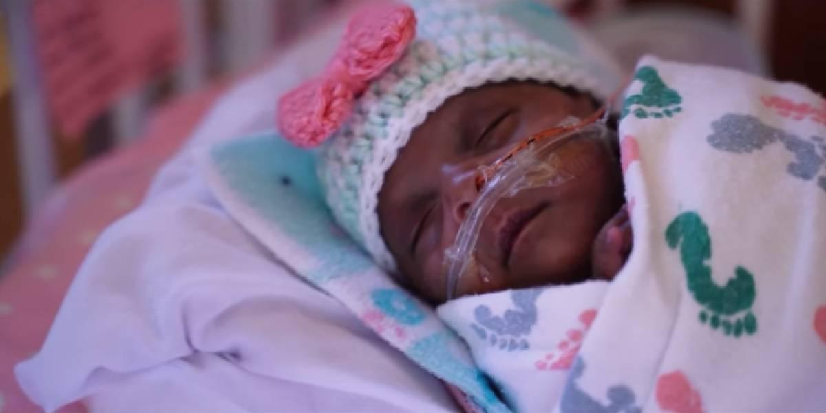 """""""Le dijeron a mi esposo que tenía una hora con ella y que iba a morir"""": dan de alta al """"bebé más pequeño del mundo"""" que nació pesando sólo 245 gramos"""