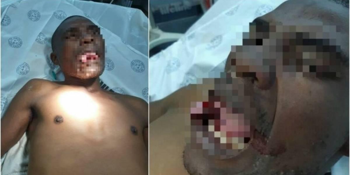 Médica arranca parte da língua de homem que tentou estuprá-la durante consulta