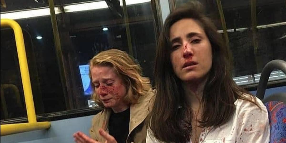 Una pareja de chicas sufre brutal ataque homofóbico en un autobús