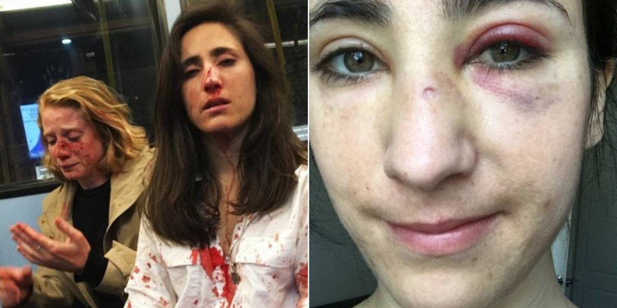 Quatro adolescentes são presos por ataque a casal em ônibus de Londres