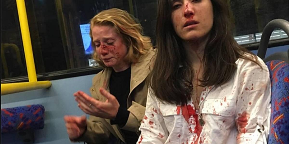 VIDEO. Pareja lésbica abordo de un autobús sufre agresión homofóbica