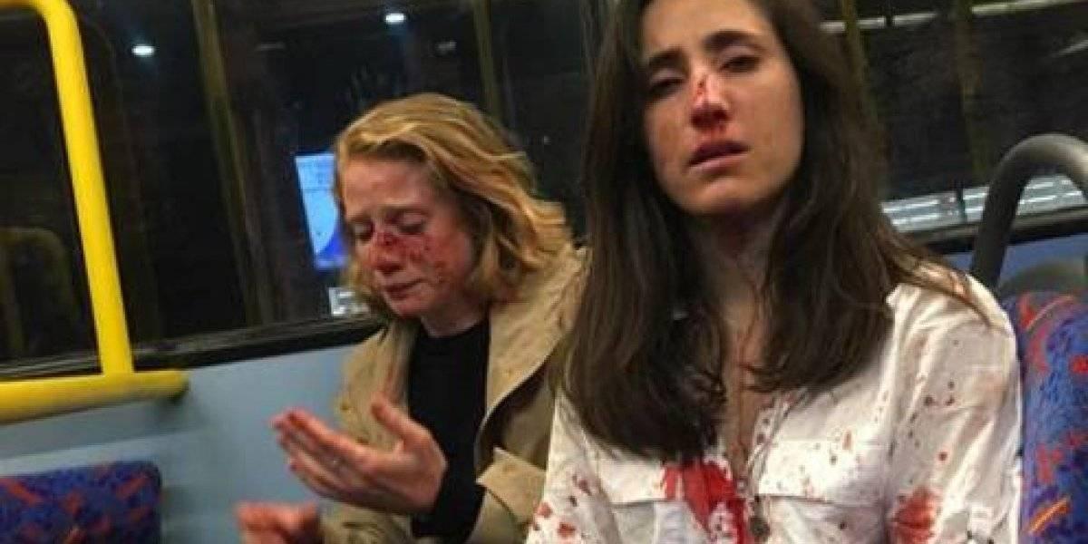 """Policía detiene a cinco sospechosos tras violenta agresión a pareja en Londres: querían que se besaran """"para su deleite"""""""
