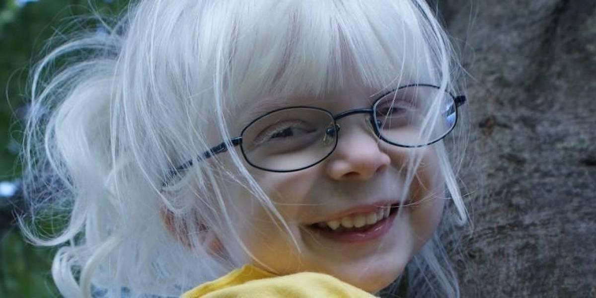 Cinco curiosidades sobre el Albinismo