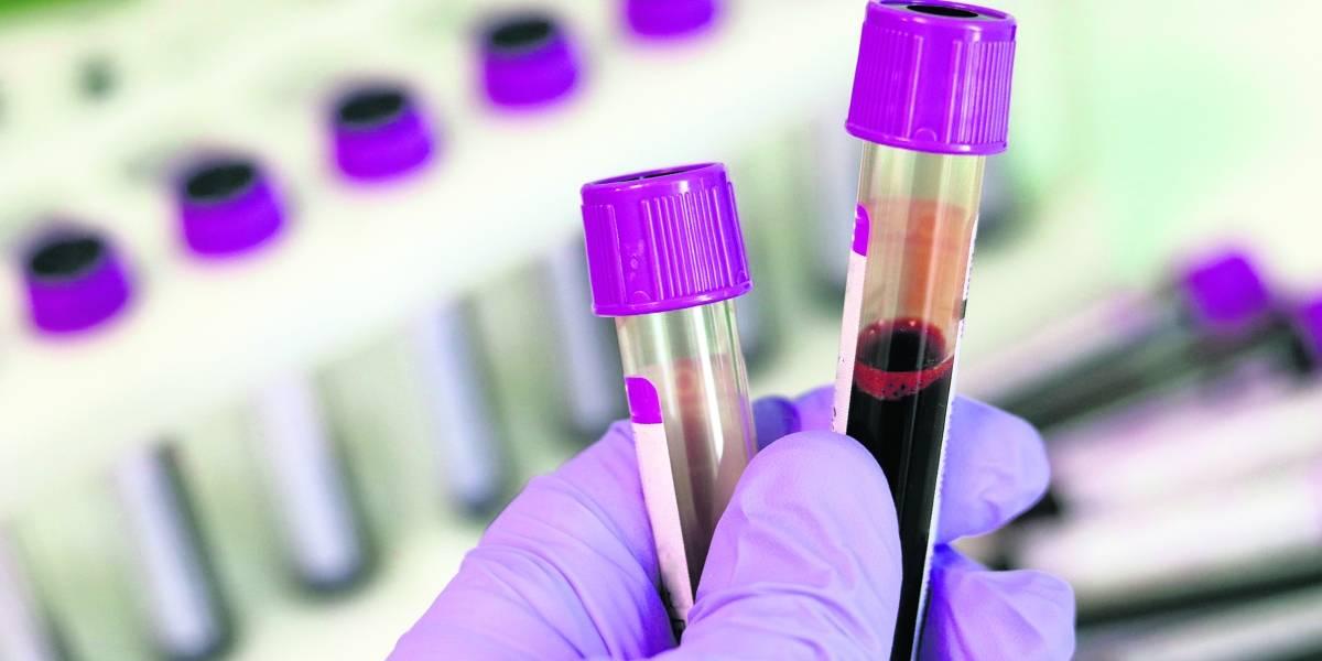 Enfatizan necesidad de hacerse la prueba del VIH
