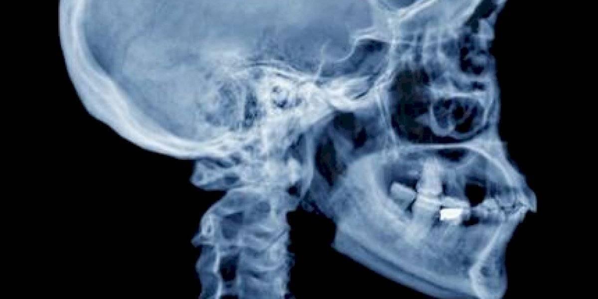 Impactante hallazgo: revelan que los humanos tienen un nuevo hueso en el cráneo por culpa de los celulares