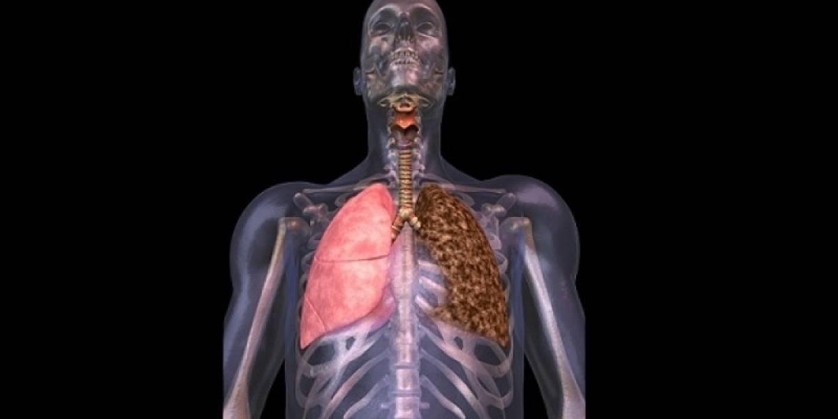 ¿Qué es el enfisema pulmonar?