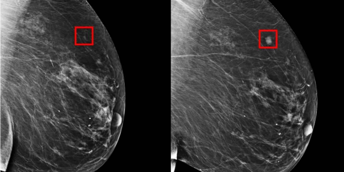 MIT crea IA que predice hasta con cinco años el cáncer de mamas