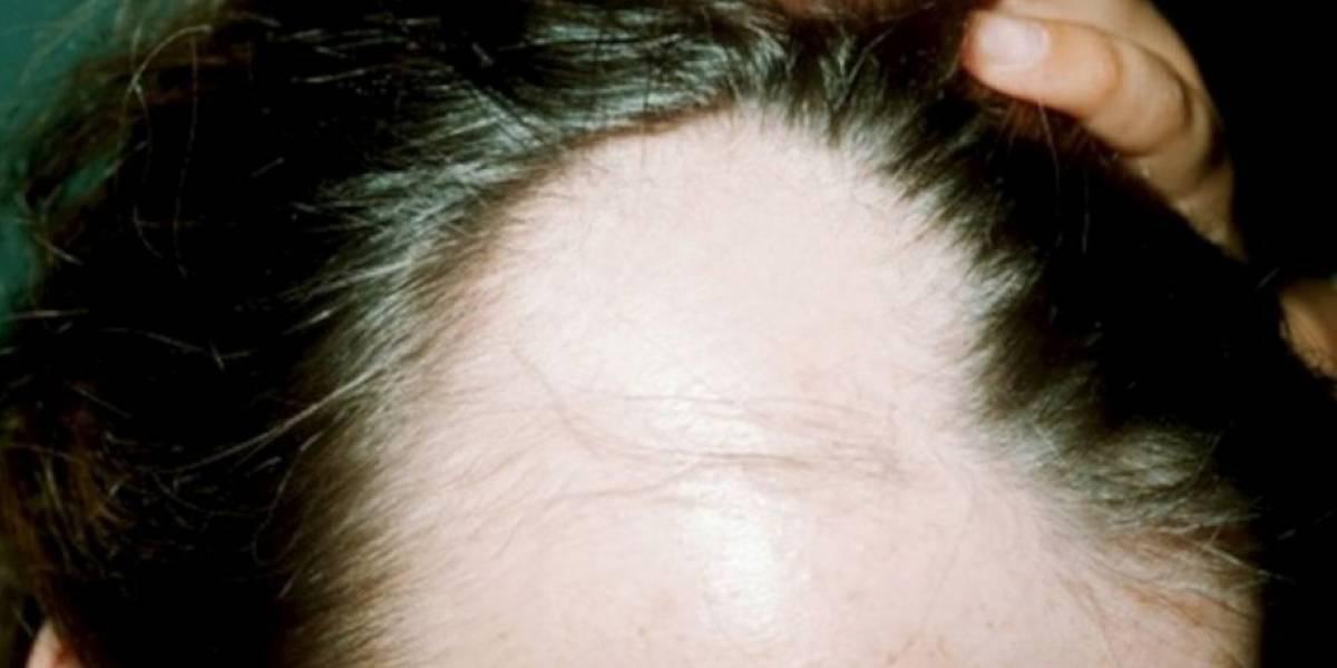 Un empleado se peleó con su jefe y le arrancó de un mordisco un pedazo del cuero cabelludo