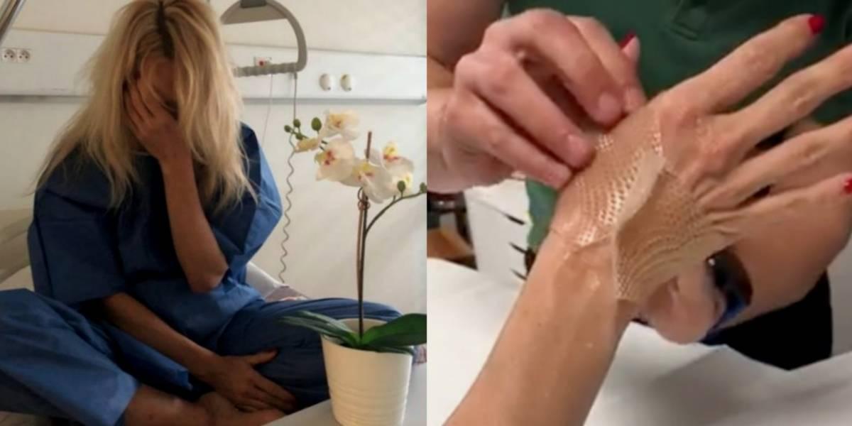 Pamela Anderson acusa a Adil Rami de haberle roto las manos