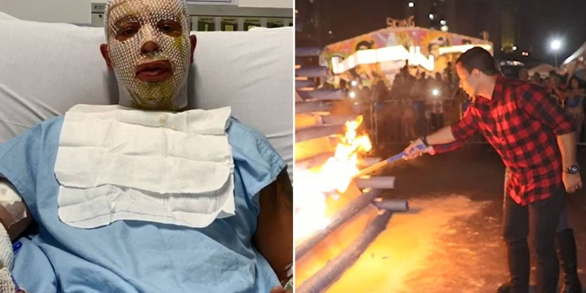 Prefeito de Osasco e esposa não sofreram 'deformidades faciais' com explosão de fogueira, diz boletim
