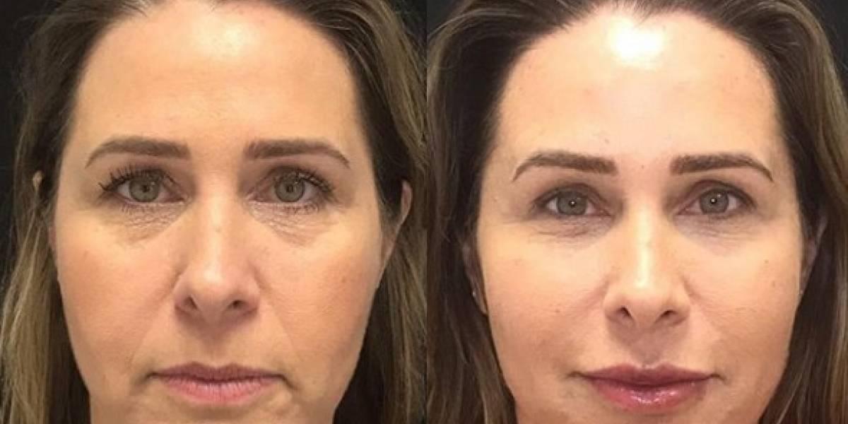 Sincerona, Xuxa opina sobre harmonização facial de ex-paquita: 'Não gostei, não...'