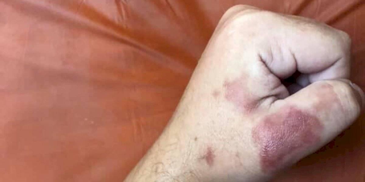 Ciudadanos reportan dos casos más de infecciones por bacterias en playas