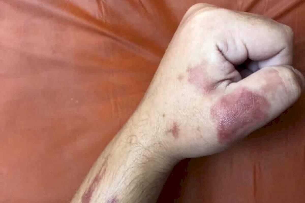 infección por estafilococos cabello humano