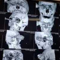 Hombre apuñalado en Veracruz