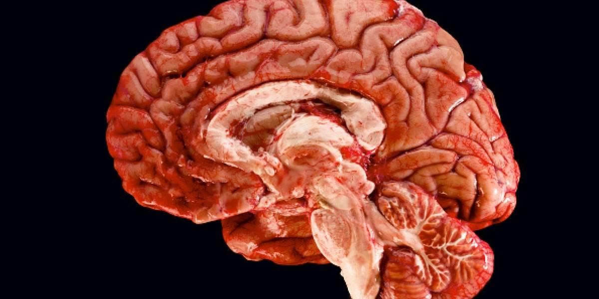 """Hombre va al hospital, le hacen exámenes y encuentran extraño """"agujero negro"""" al interior de su cráneo: le faltaba la mitad del cerebro"""