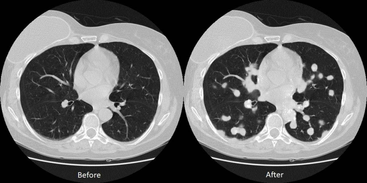 Grave: Investigadores logran alterar diagnósticos de pacientes de cáncer a través de hacking