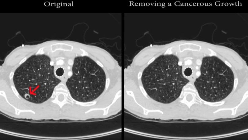 Grave: Investigadores logran alteran diagnósticos de pacientes de cáncer a través de hacking