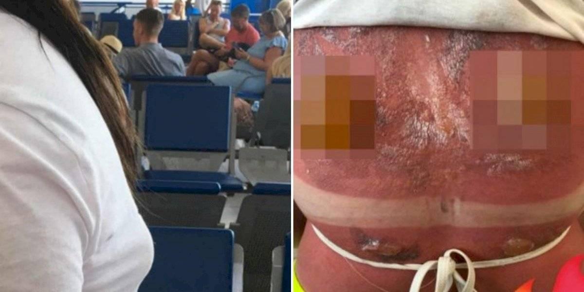 Jovem compartilha queimaduras chocantes do sol mesmo após ter usado protetor solar