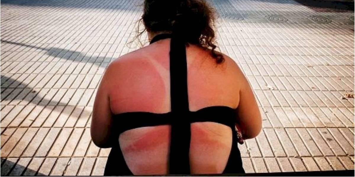 Beber alcohol hace que la piel sea más vulnerable a los efectos del sol