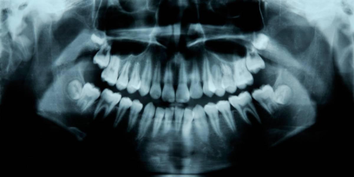 Niño de 7 años va al hospital con la mandíbula inflamada y deja impactado a los médicos: tenía más de 500 dientes en la boca